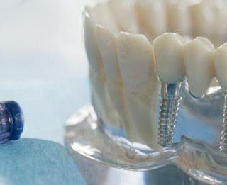Clinica odontoiatrica in Albania e l'implantologia dentale