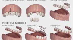Come prendersi cura e mantenere la propria protesi dentale fissa?